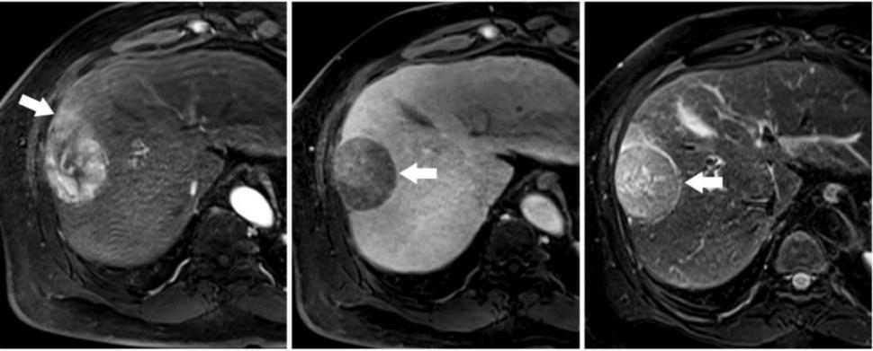 hepatic cancer imaging anemia x deficiencia de hierro