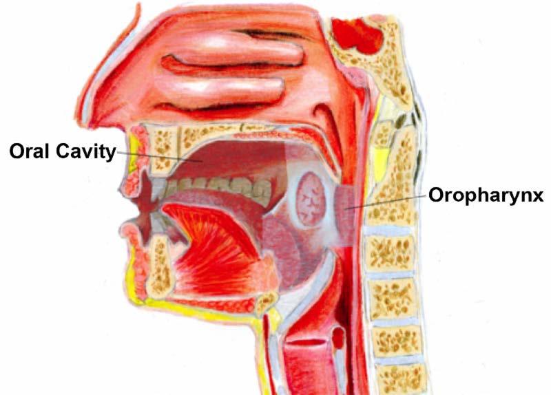 tracheal papillomatosis icd 10