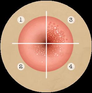 hpv behandeling bij mannen vaccin papilloma virus avis