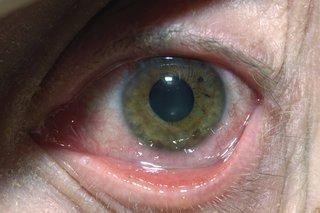 hpv herpes simplex 2 tratament pentru giardia cdc