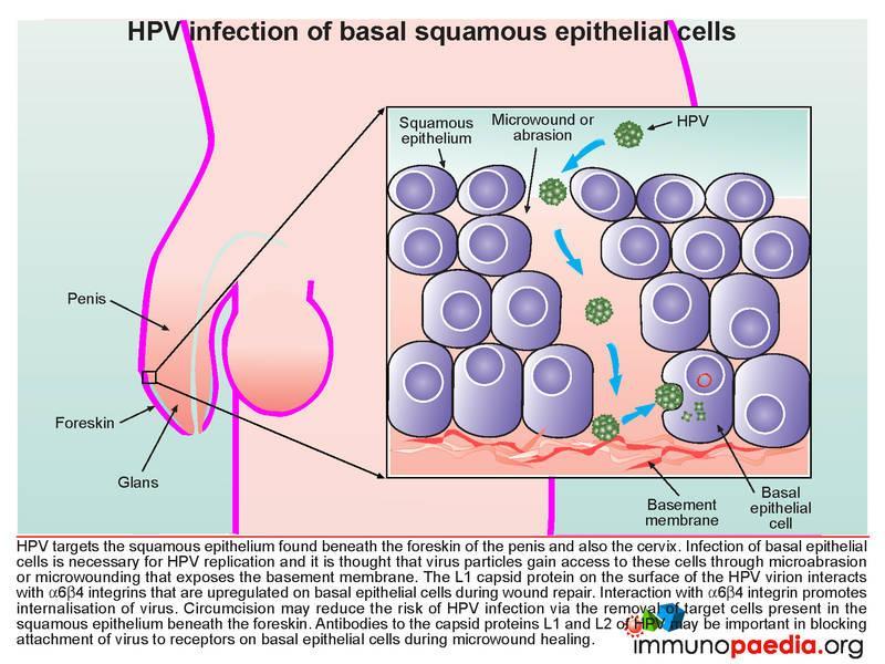 warts on hands sign of hiv tratamentul viermilor la ureche