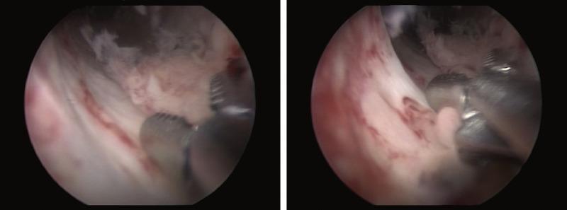 hpv urethral cancer hpv impfung jungen mit 17