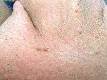 hpv virus heilbar hpv linked to colon cancer