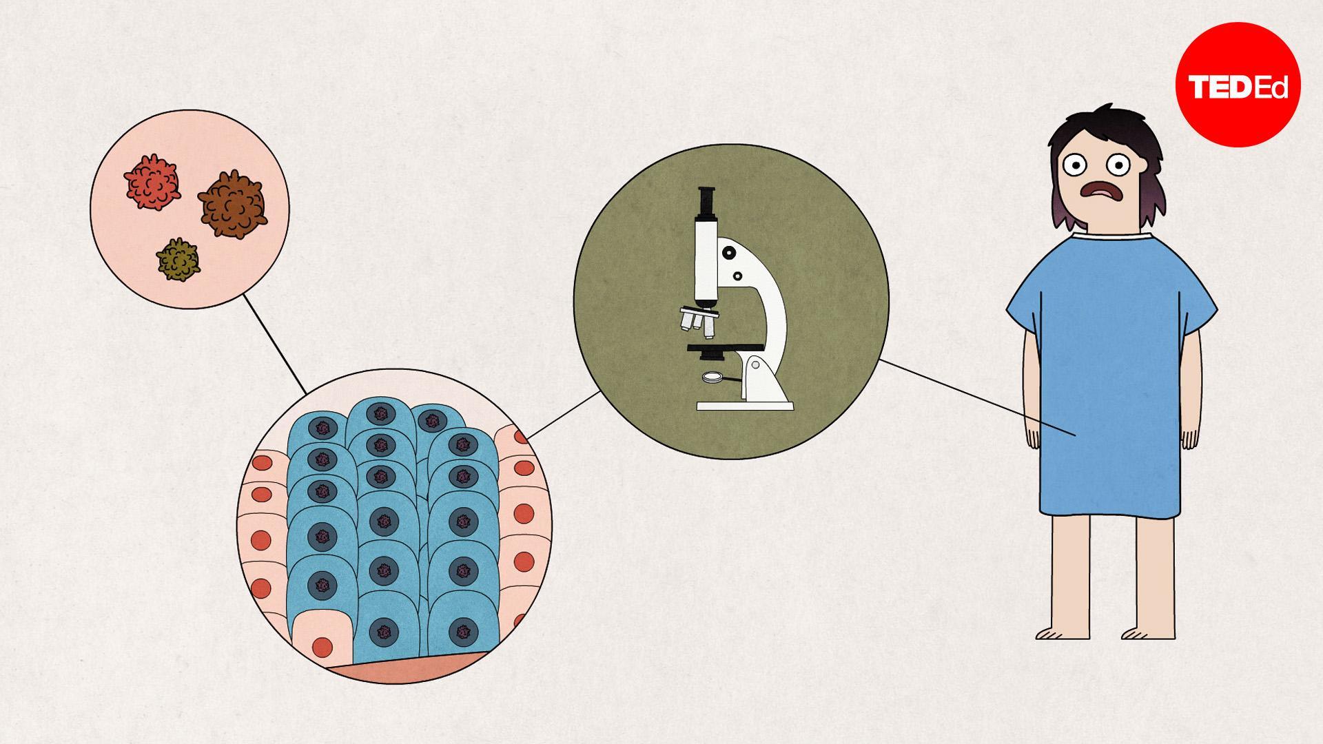il papilloma virus rimane a vita hpv impfung kosten niederosterreich