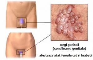infectia cu papiloma virus simptome