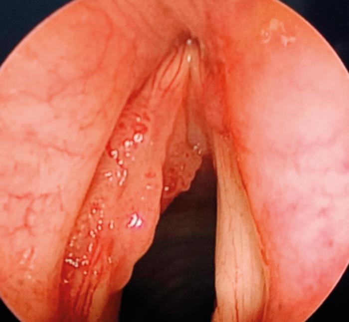 laryngeal papillomatosis article