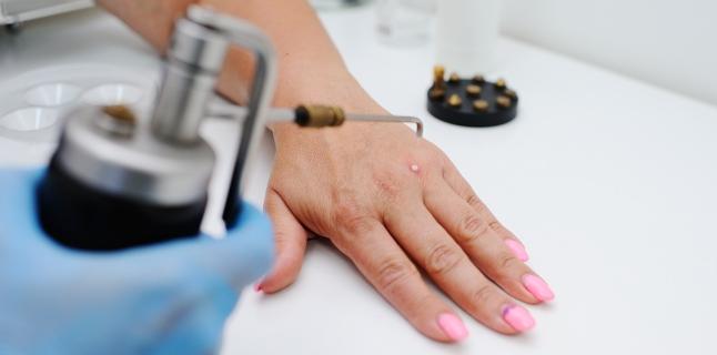 cum să tratezi papiloma pe piele
