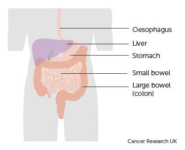 neuroendocrine cancer bowel hpv outbreak symptoms