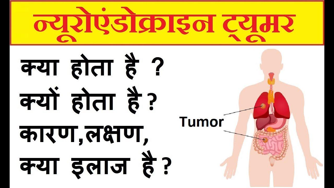 neuroendocrine cancer kya hai parazit în timpul tratamentului pielii umane