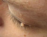 non pigmented papilloma icd 10 anemie de vierme