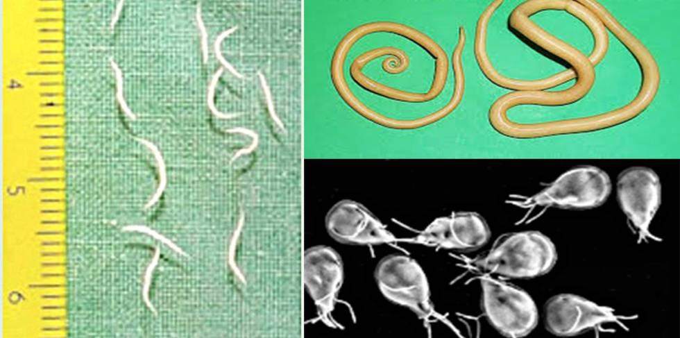 Oxiuros porque salen. Regim alimentar paraziti intestinali - bebeplanet.ro