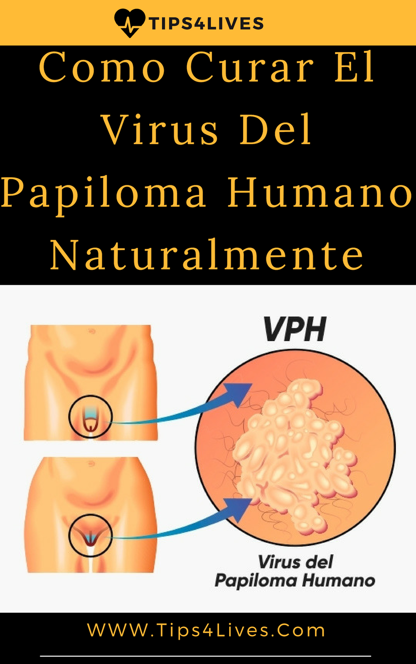 papilloma hpv tratament