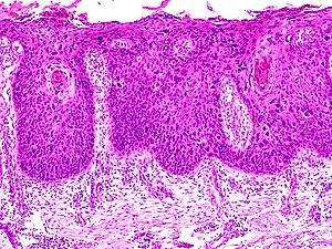 hpv virus symptoms mouth cancer sarcoma tratamento