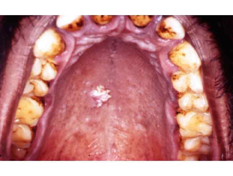helmintox side effects simptomele viermilor din corpul uman