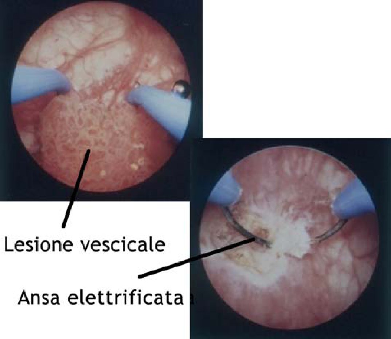 Papilloma vescicale femminile. Papilloma vescicale e papilloma virus - ceas-mana.ro