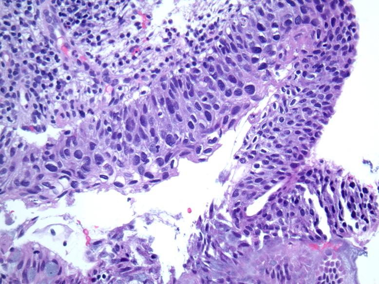papilloma virus hsil pisica giardia panacur