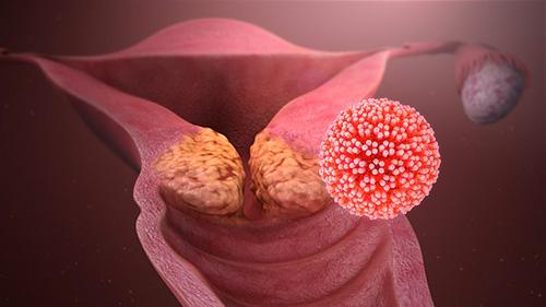 papilloma virus in uomo