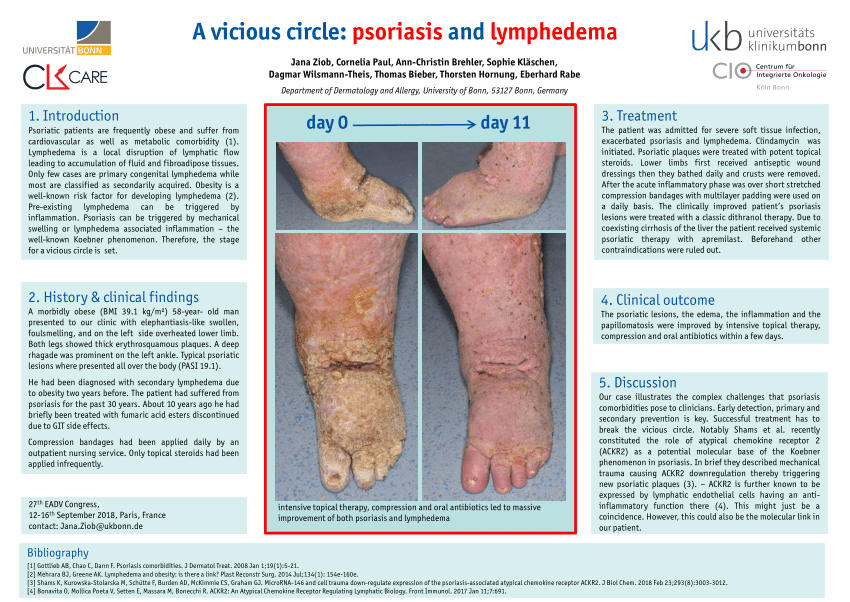 papillomatosis in lymphedema