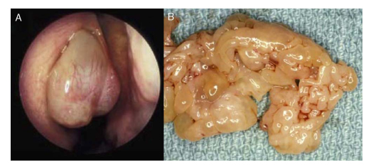intraductal papilloma risk of cancer
