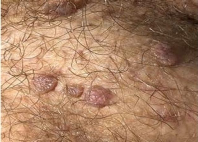 hpv vaccinatie mannen l homme arbre papillomavirus