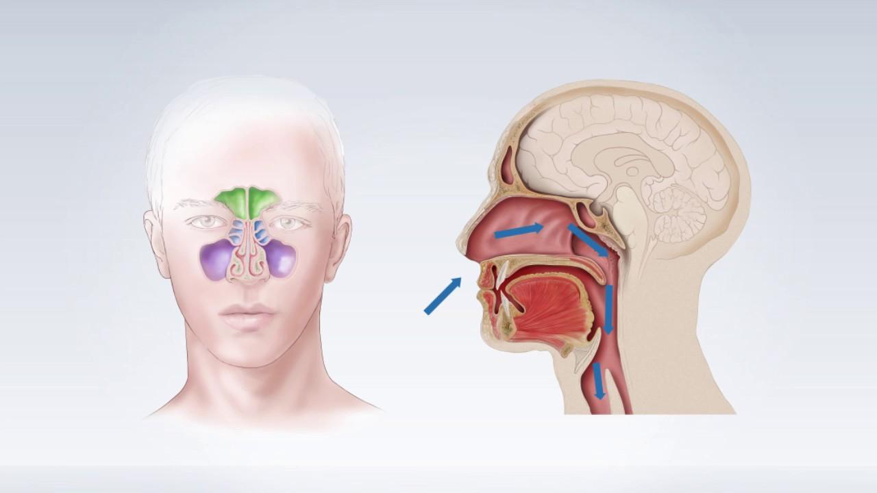 paraziți în nazofaringe și sinusuri simptomele paraziților în tratamentul corpului uman