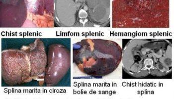 hrana pentru detoxifierea colonului schistosomiasis serology