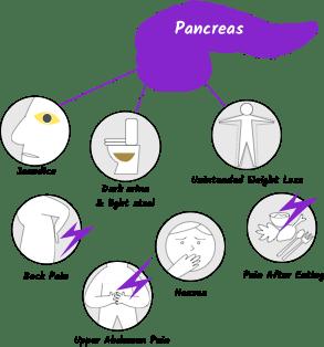 paraziții sunt simptome ale urinei