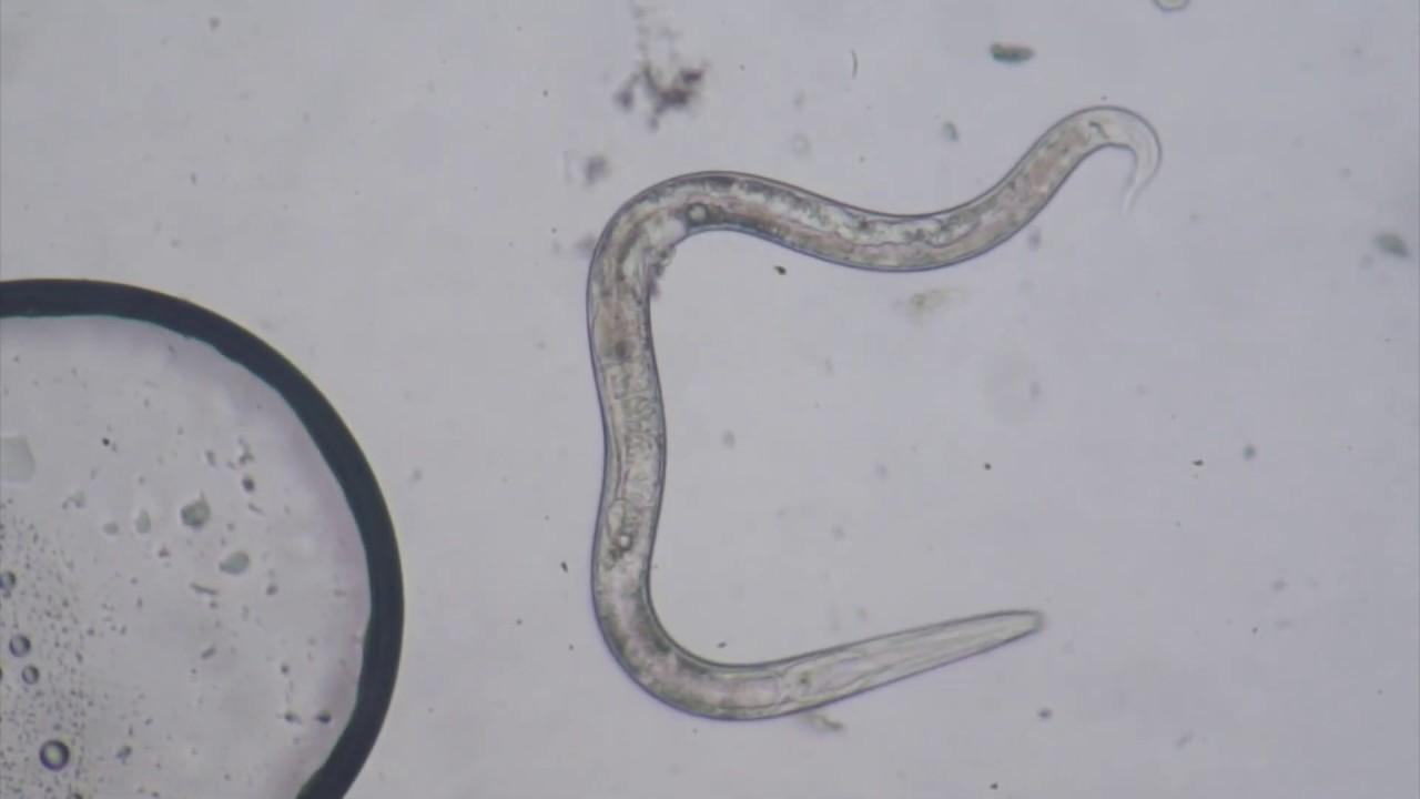 paraziti tratament lentec