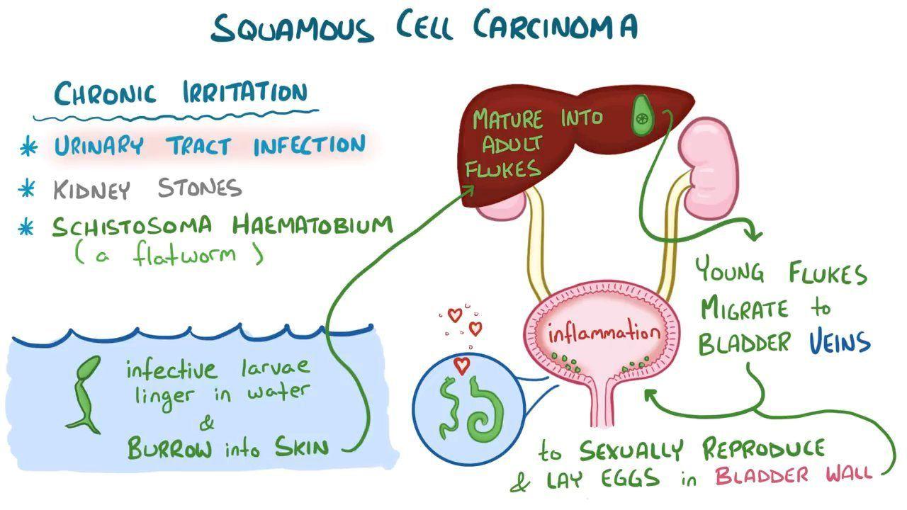 schistosomiasis osmosis papillary urothelial hyperplasia pathology outlines