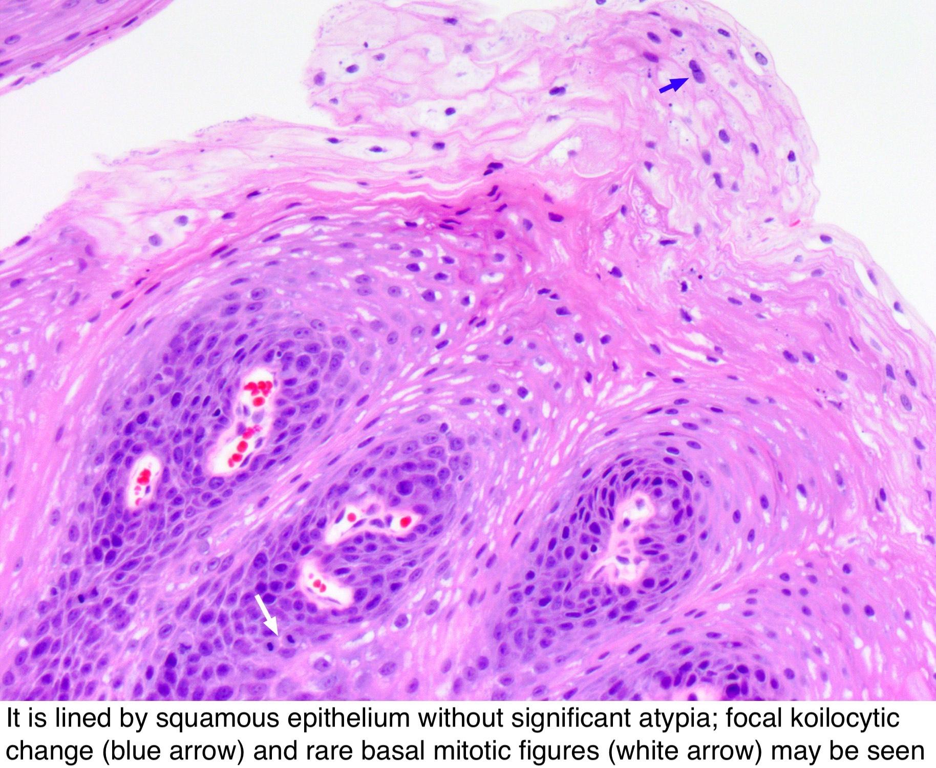 squamous papilloma nasal papiloma en hombres y mujeres