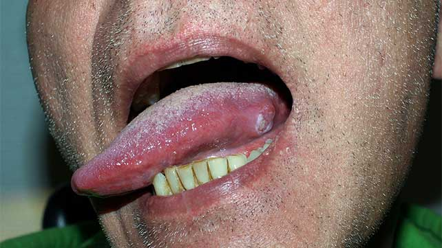 squamous papilloma nhs