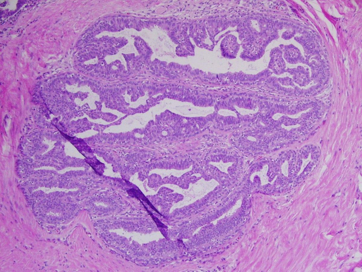 squamous papilloma skin pathology giardia em umani