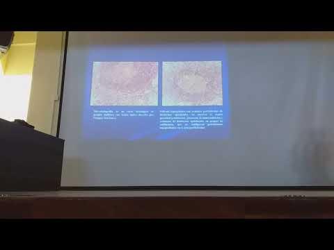 schistosomiasis myanmar