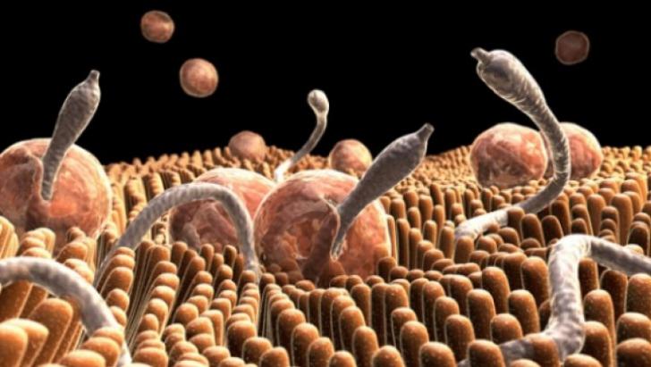 Tratamente naturiste pentru paraziţii intestinali