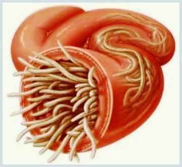 tratamentul mâncărim al viermilor dieta de detoxifiere după irigarea colonică