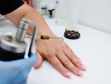 medicamente și preparate pentru tratarea papilomelor piciorului clinica de îndepărtare a condilomului
