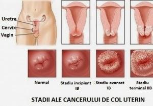 simptome ale verucilor genitale în uretra)
