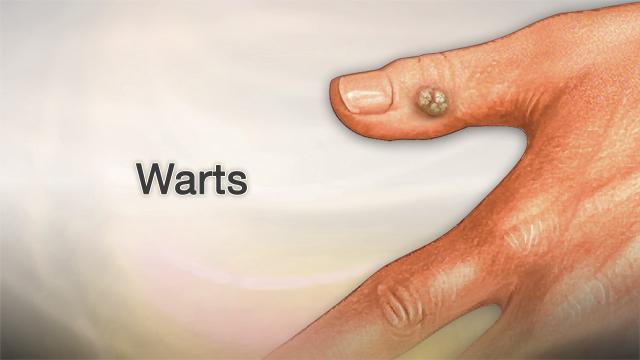 este periculos să eliminați papiloamele can hpv virus cause irregular periods