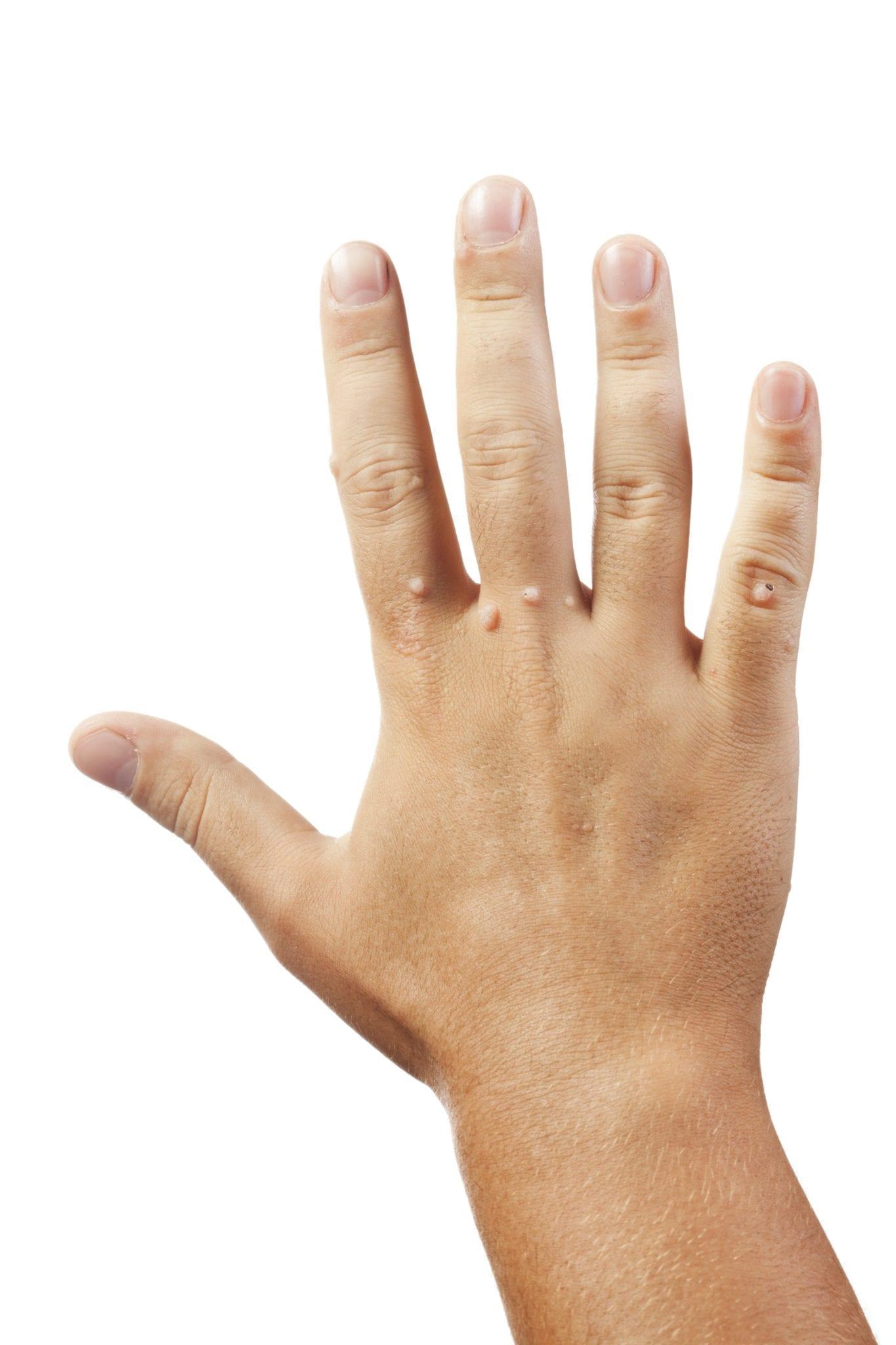 ce alimente detox colonul tău hpv anogenital infection icd 10
