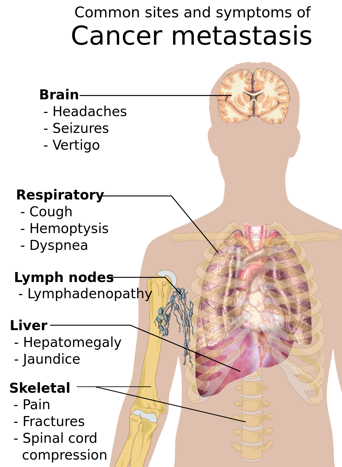 human papillomavirus hpv website