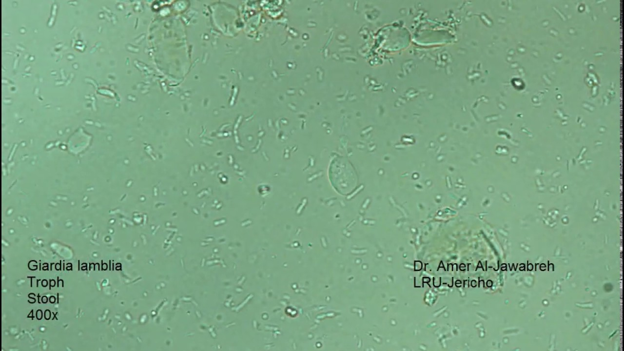 Giardia bine apă. Infectia cu giardia (giardioza)