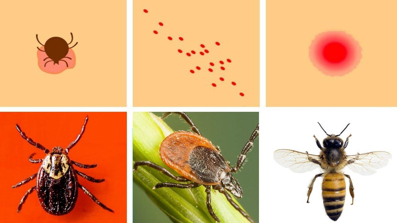 prevenirea parazitului pentru oameni diferențiere între flukes și tâmplă