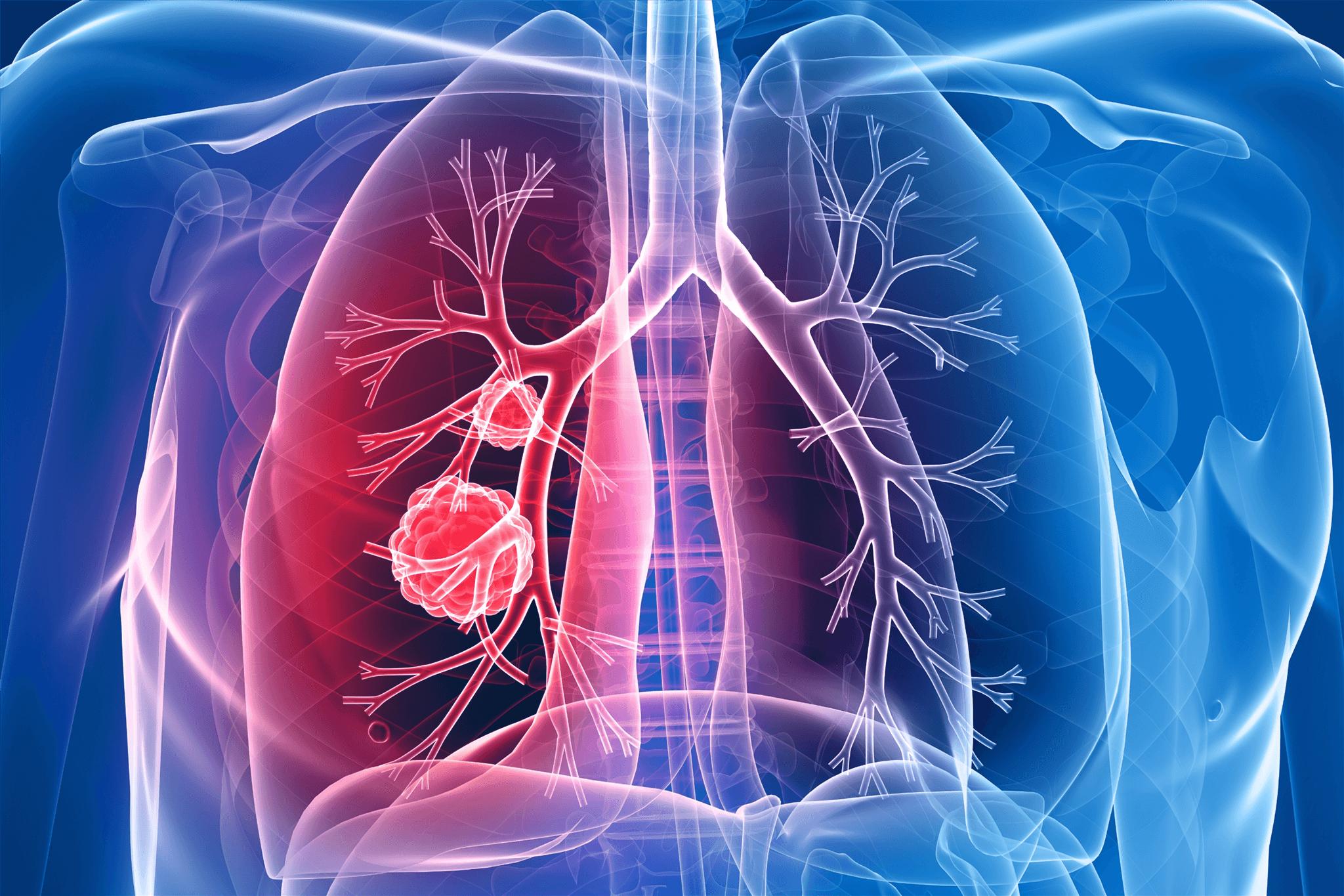 cauzele cancerului de plamani