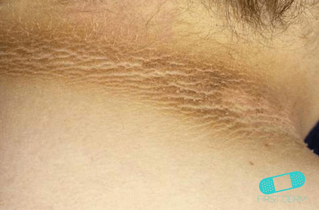 tratamentul viermilor la ureche condiloamele se vindecă sau nu