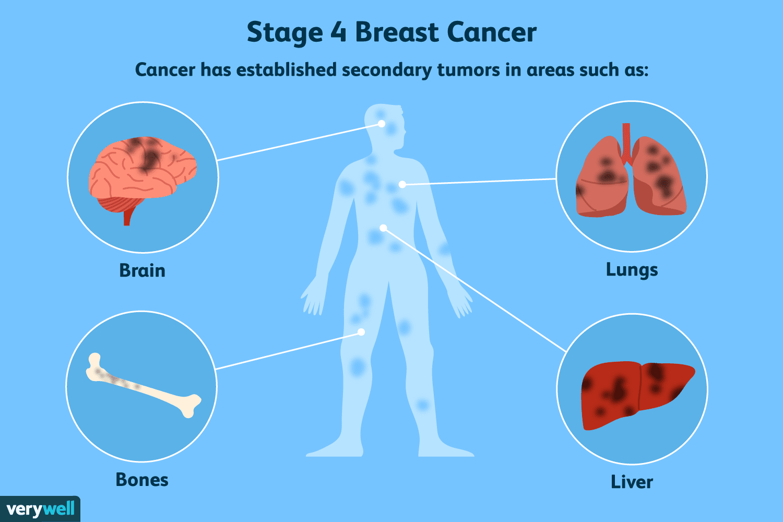 metastatic cancer no treatment papillary lesion b3