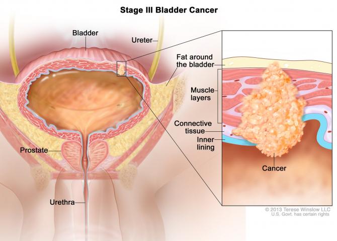 cancer vezica urinara evolutie cheloo suma defectelor