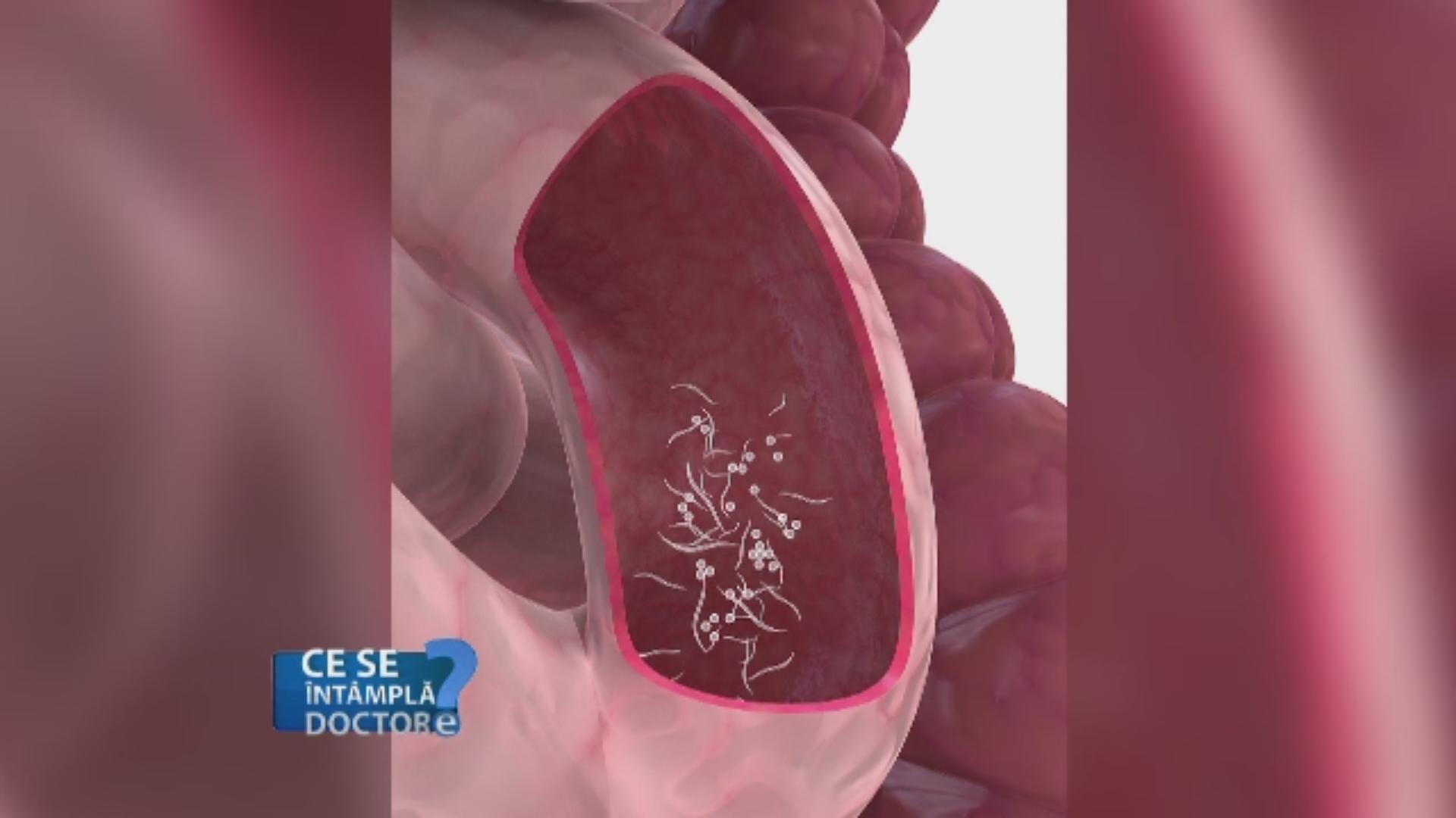 tratamentul și prevenirea comprimatelor parazite adică oocite și paraziți