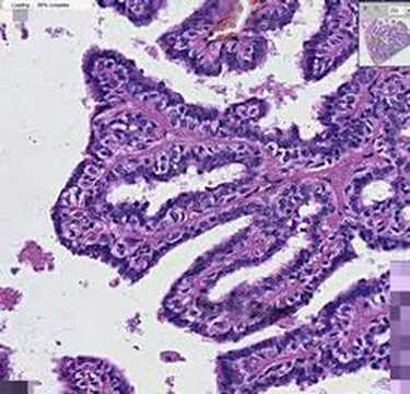 comprimate parazite vierme pentru copii cum să tratezi un papilom uman în ginecologie
