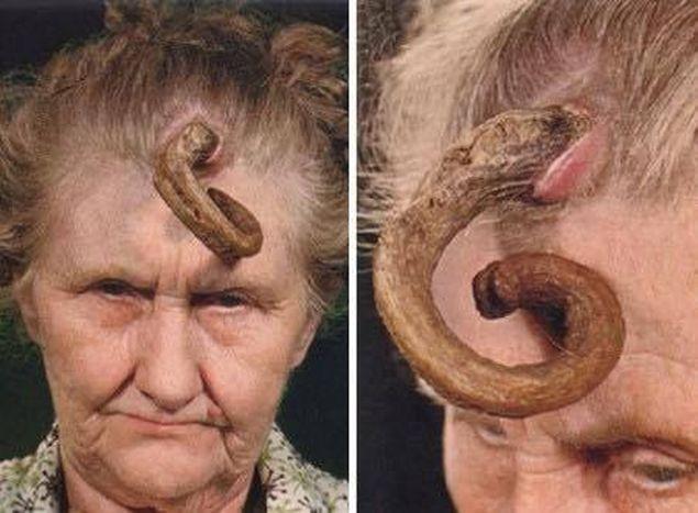 viermi umani tratamentul helmintiazia în forceps