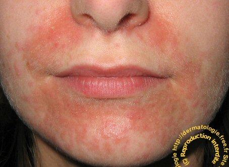 Dermatite bebe visage, Hpv levres bouche